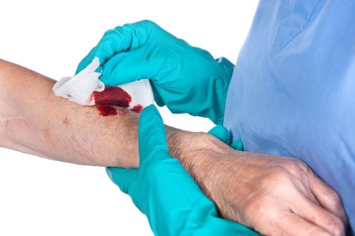 Промывание раны